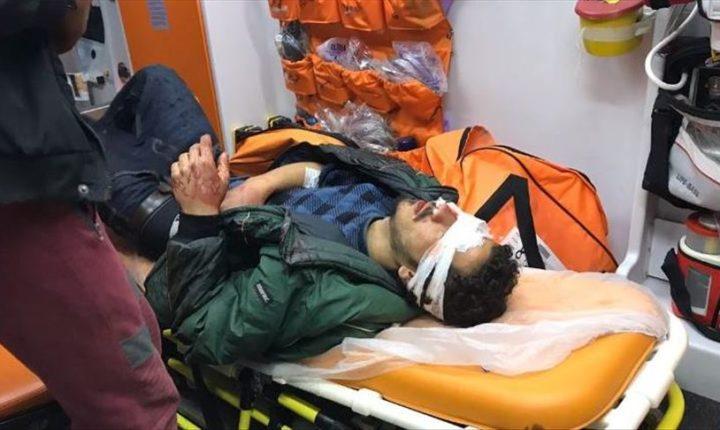 طالب لجوء يفقد بصره برصاص الأمن اليوناني